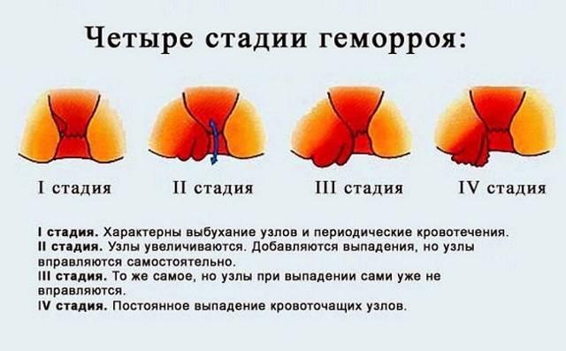 Во время менструации болит задний проход