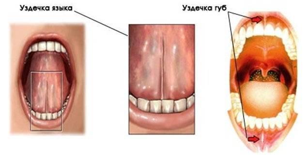 Зачем делают подрезание уздечки под языком у детей