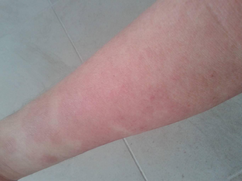 Сыпь на теле у ребенка без температуры без зуда по всему телу