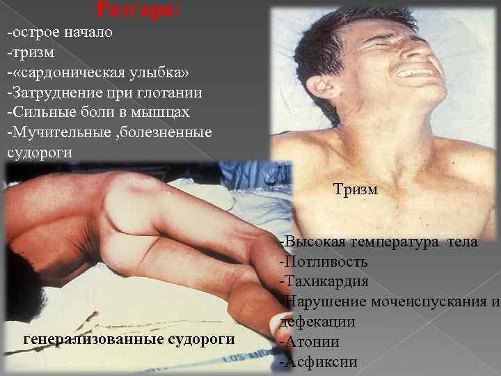 Столбняк у детей: причины, симптомы, лечение. столбняк у детей симптомы лечение что делать если у ребенка начался столбняк
