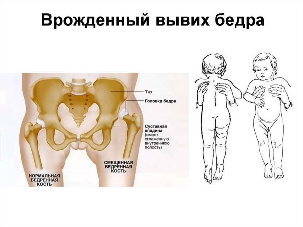 Дисплазия тазобедренных суставов у детей до года: помогут стремена и подгузники!