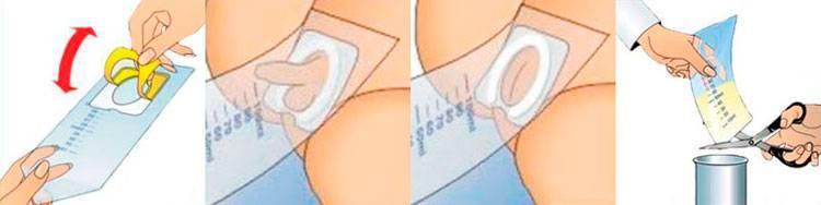 Как правильно сдавать мочу при беременности с тампоном