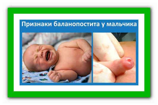 Воспаление головки у мальчика: причины, симптомы и лечение