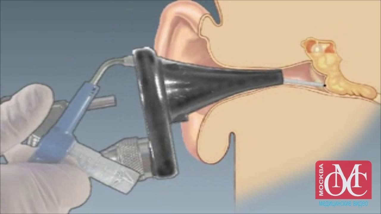 Шунтирование ушей у детей: зачем проводят процедуру и какие могут быть последствия?