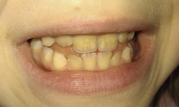 Черный налет на зубах у детей: причины, лечение, фото, что говорит комаровский?