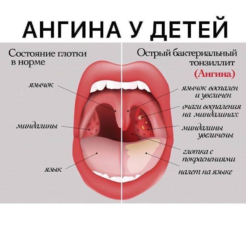 Рыхлое горло что означает. у ребенка красное рыхлое горло. в чем причина и чем лечить