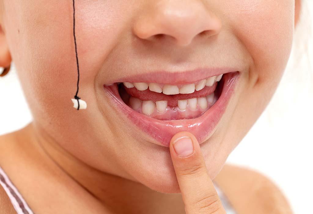 Удаление молочных зубов у детей: показания и алгоритм процедуры