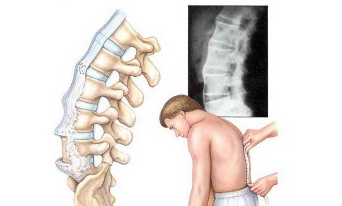 Нестабильность шейных позвонков: характерные признаки и лечение