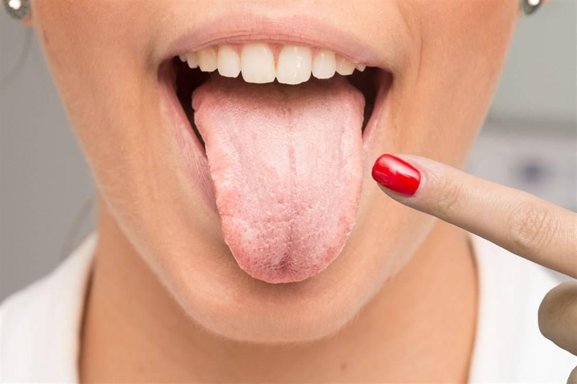 Вяжет во рту - причины симптомы, способы лечения