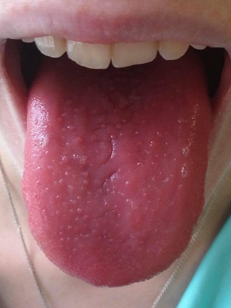 У ребенка красный язык с пупырышками и сыпь