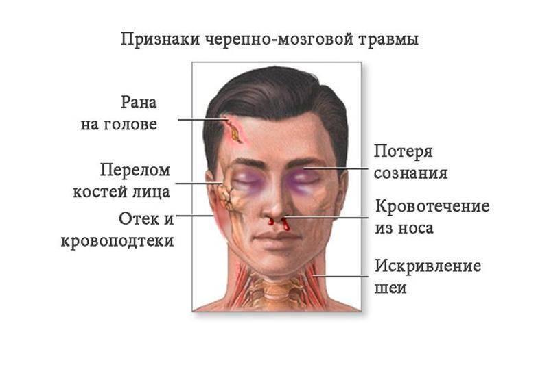 Травма головы у детей до года