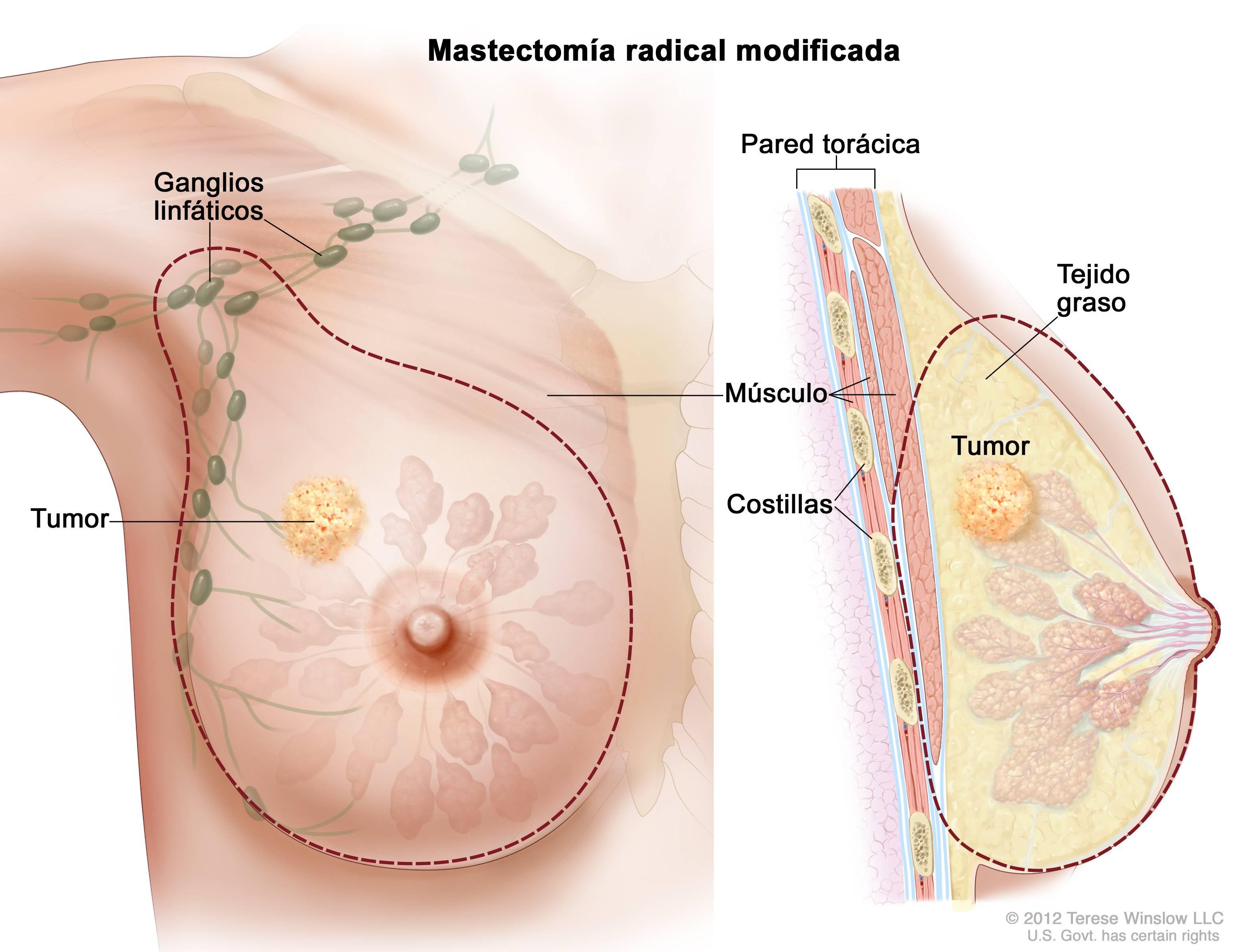 Почему болит грудь у кормящей: физиологические и патологические причины. что делать, если болит грудь после кормления - автор екатерина данилова - журнал женское мнение