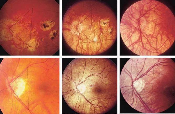 ✅ ангиопатия сетчатки глаза у ребенка что это такое - денталюкс.su
