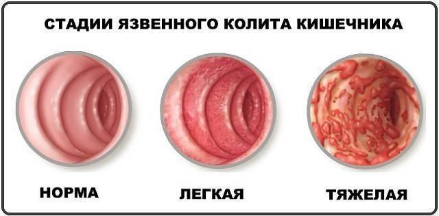 Кандидоз у детей (32 фото): молочница у новорожденных и грудничков, симптомы и лечение кандидоза кишечника и паха