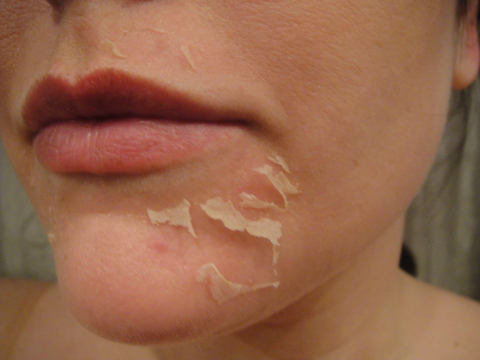 Сохнет кожа во время беременности причины