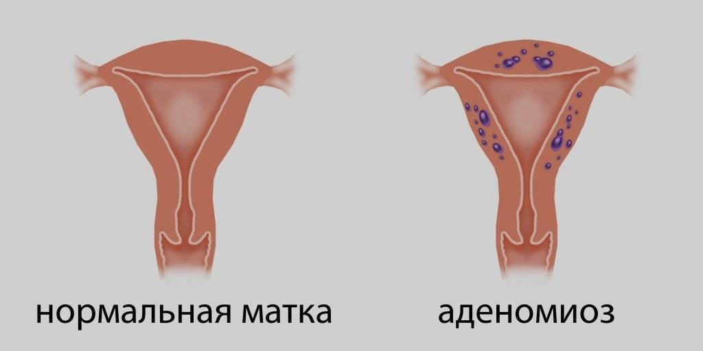 Аденомиоз и беременность: можно ли и как забеременеть при заболевании, отзывы