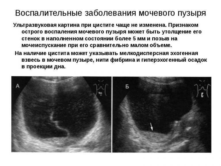 Как подготовиться женщине к узи мочевого пузыря, и как проводится процедура?