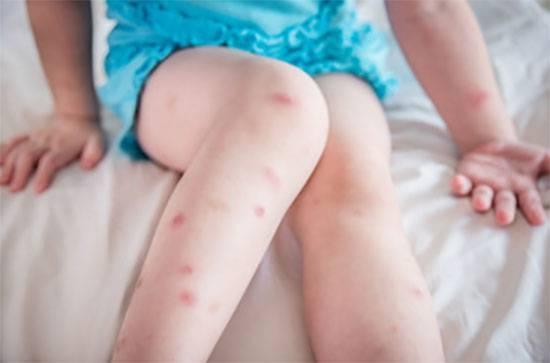 Кулицидоз: аллергия на укус комаров. симптомы и лечение