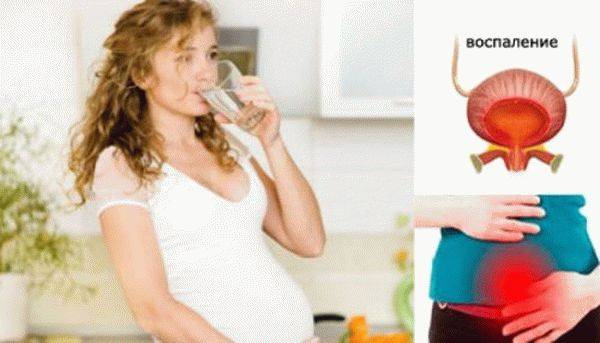 Хронический фарингит при беременности – последствия и влияние на плод