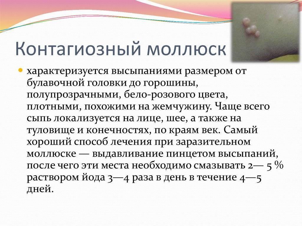 Моллюски на коже у ребенка — причины и способы лечение