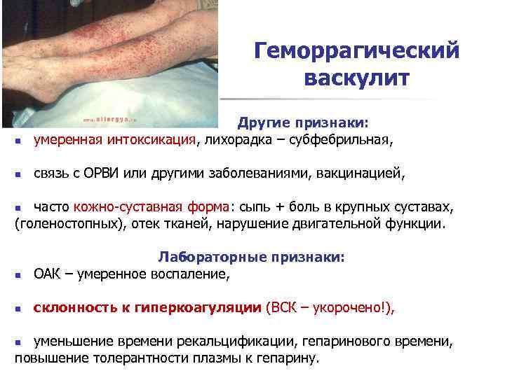 Геморрагический васкулит у детей: лечение, диета, симптомы, причины возникновения; васкулит у детей: что это за болезнь, симптомы, у ребенка, чем лечить; геморрагическая сыпь: васкулит, что это такое, причины, симптомы, лечение, на ногах, у детей