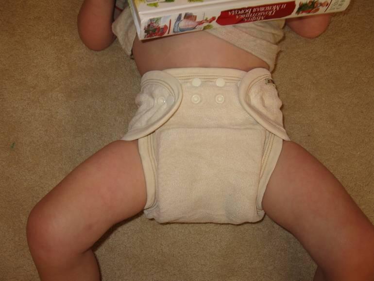 Дисплазия тазобедренных суставов у новорожденных и детей до года: признаки, симптомы, лечение и профилактика