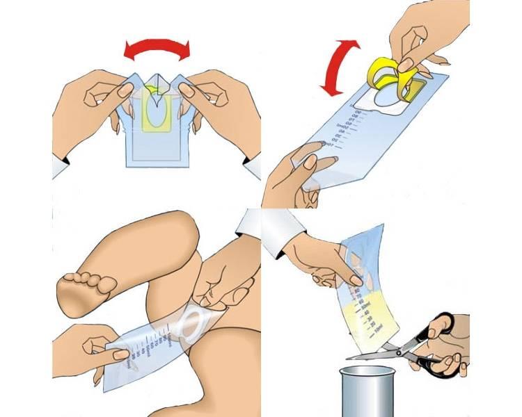 Как собрать мочу у новорожденной девочки (мочесборник для девочек)