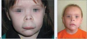 У ребенка при температуре опухает верхняя губа