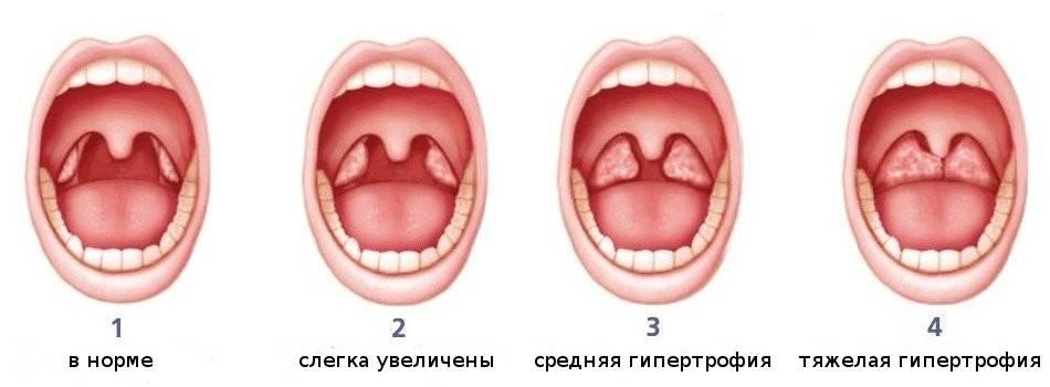 Красное горло у ребенка: как выглядит фото здоровой и больной слизистой?