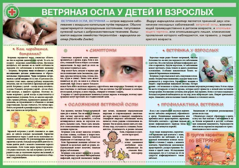 Как не заразиться ветрянкой, профилактика заболевания у детей