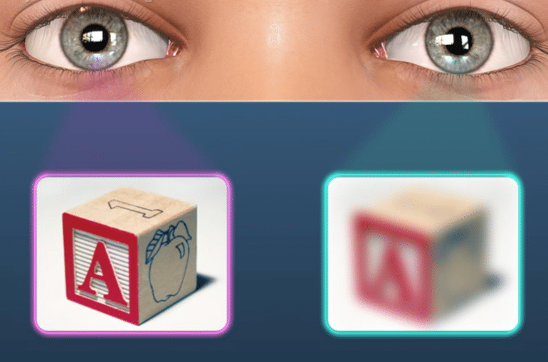 Амблиопия - причины, симптомы, диагностика и лечение
