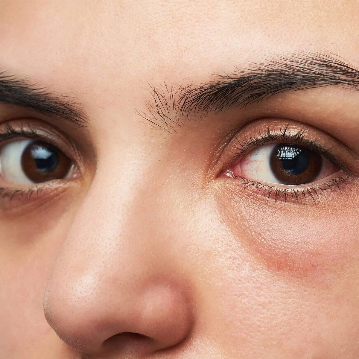 Синие круги под глазами - причины у женщин и мужчин