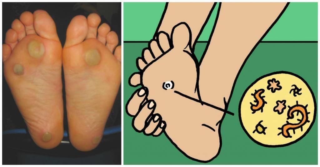 Бородавка на подошве ноги у ребенка лечение в домашних условиях