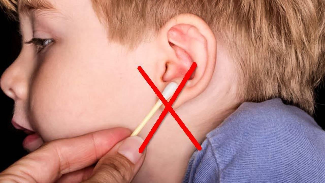 Пробки в ушах у ребенка что делать