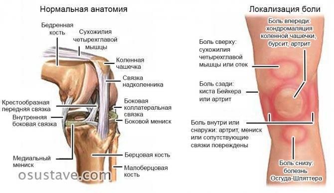 Болят колени от приседаний: почему больно и что делать