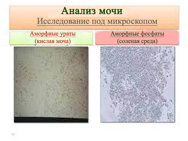 Причины появления в анализах мочи новорожденного кристаллов солей