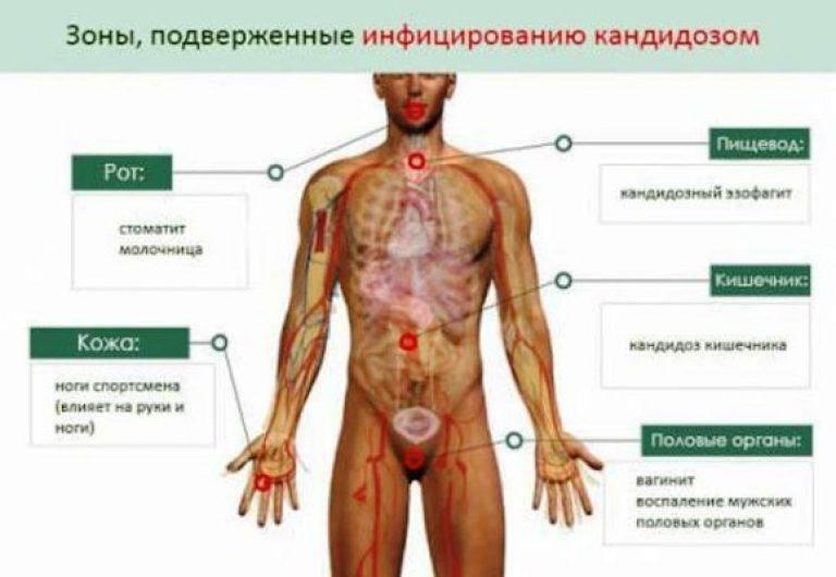 Кандидоз у детей: лечение грибка в кишечнике, на коже, в ушах и других местах
