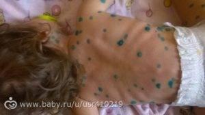 Воспаление лимфоузлов при ветрянке у детей