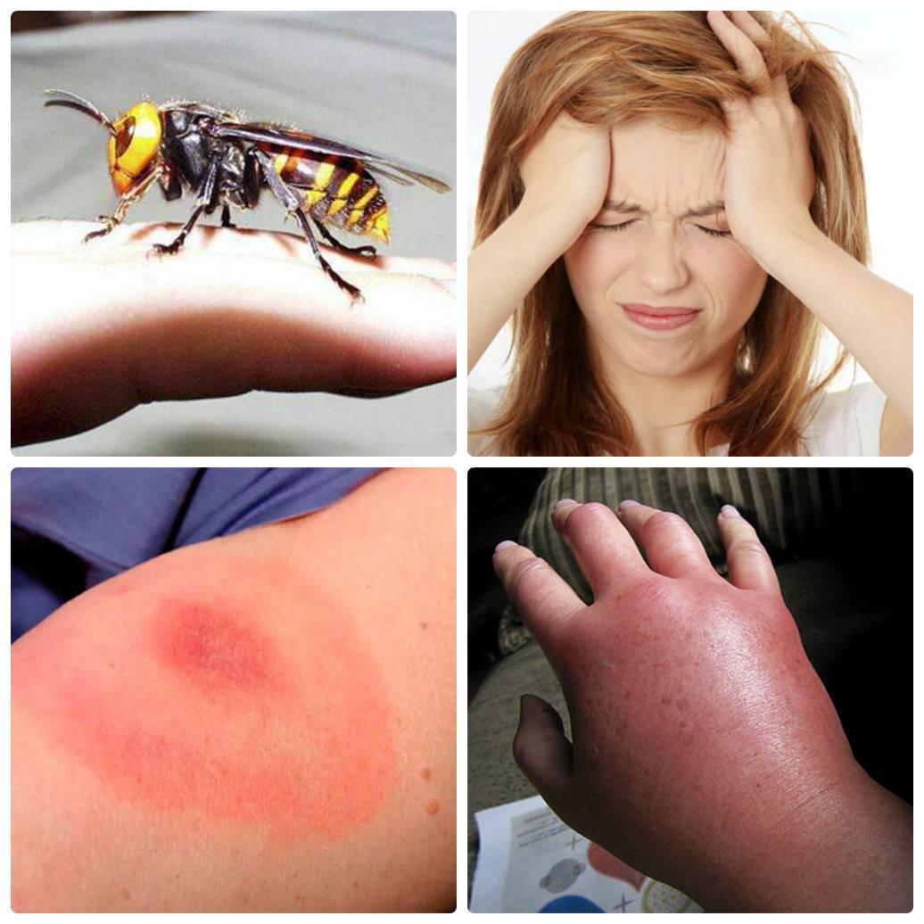 Как проявляется аллергия на укусы комаров у детей?