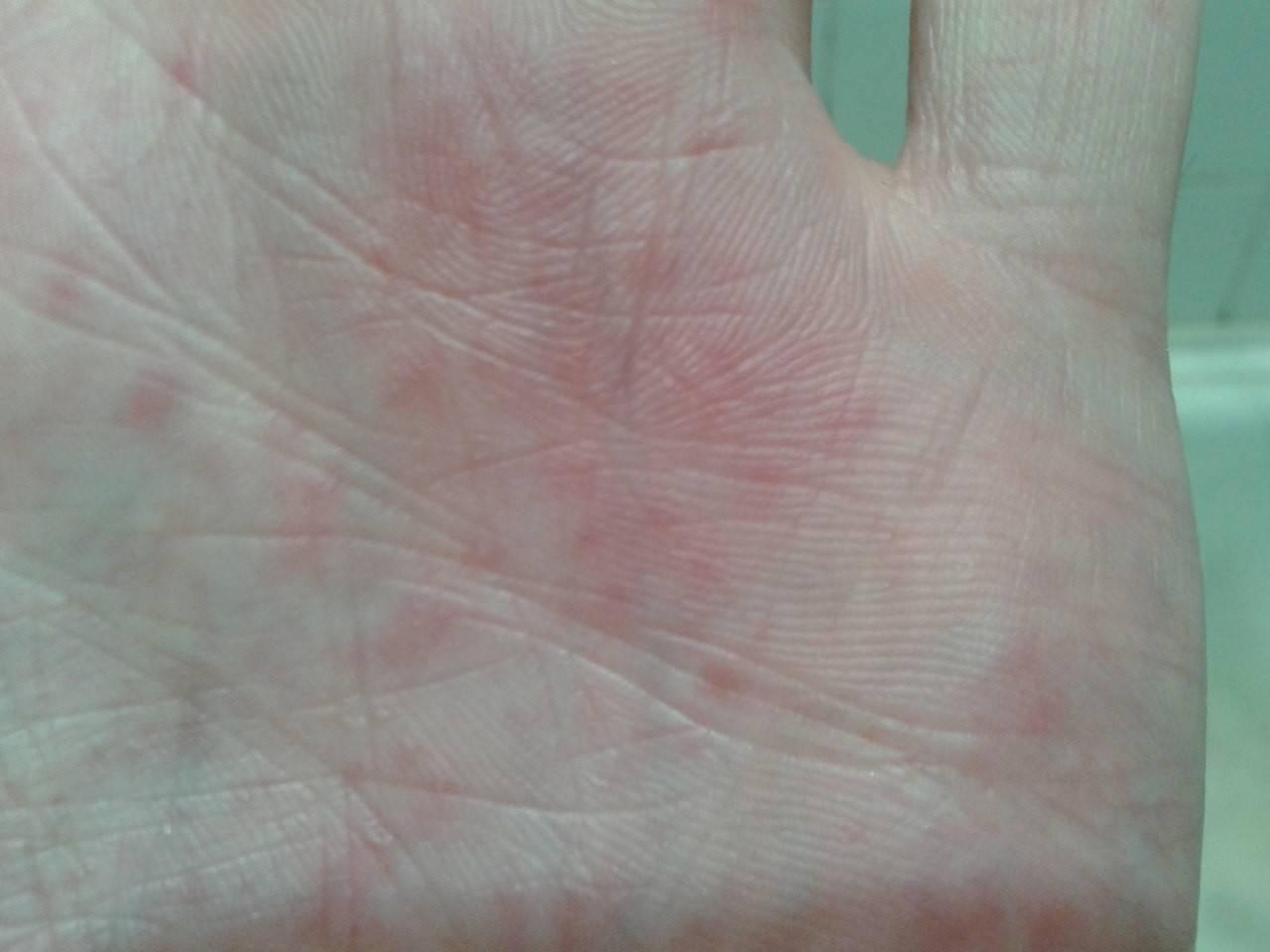 Виды кожных высыпаний у детей: фото сыпи на груди, спине и по всему телу с пояснениями