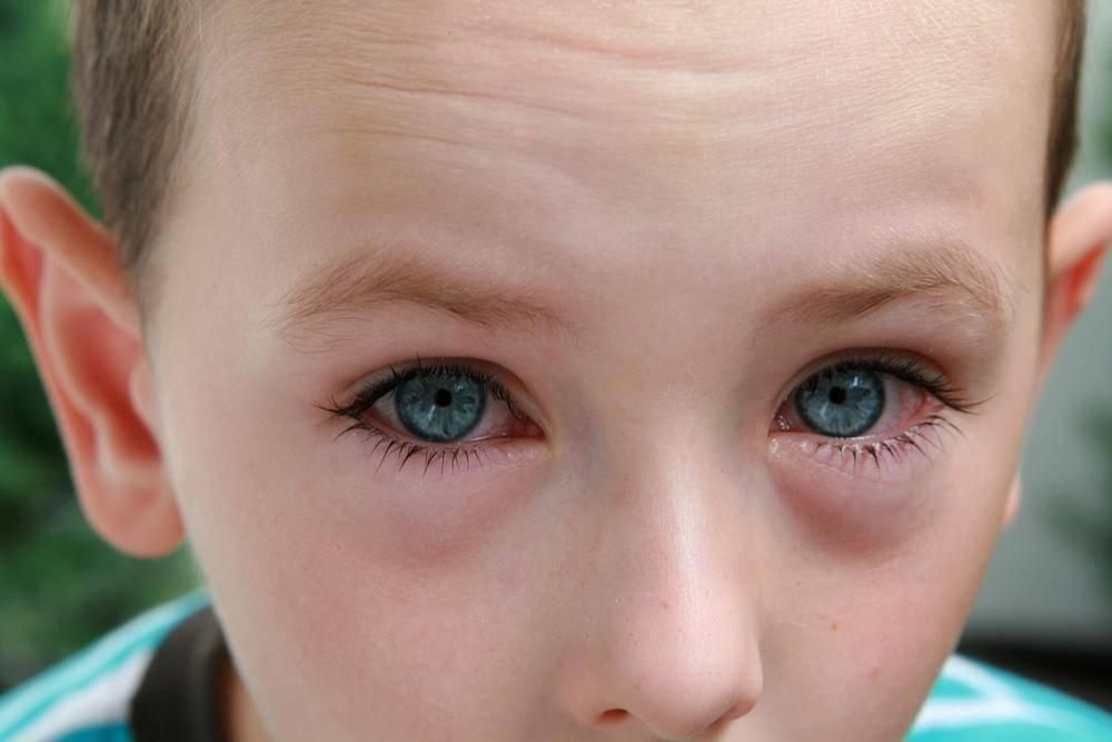 Конъюнктивит у ребенка аллергический - симптомы и лечение глаз