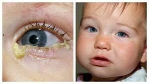 У ребенка зеленые сопли и гноятся глаза: лечение насморка с кашлем и конъюнктивитом при простуде