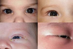 У ребенка гноятся глаза: причины, факторы риска, способы терапии