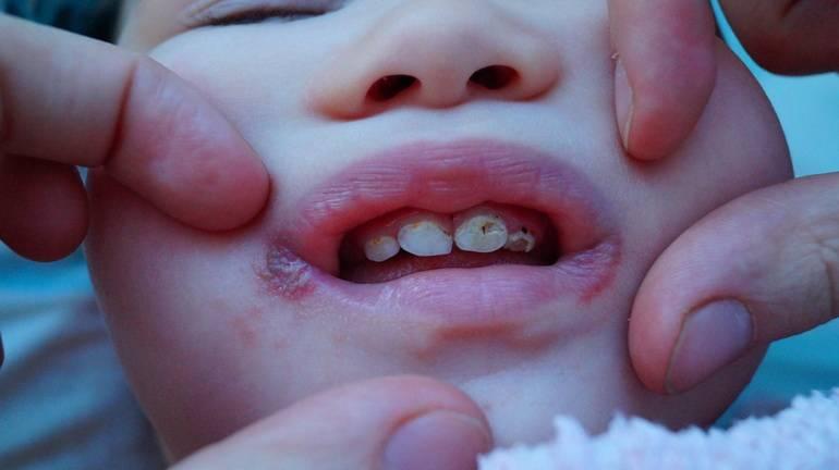 Бутылочный кариес у детей: лечение, причины, фото