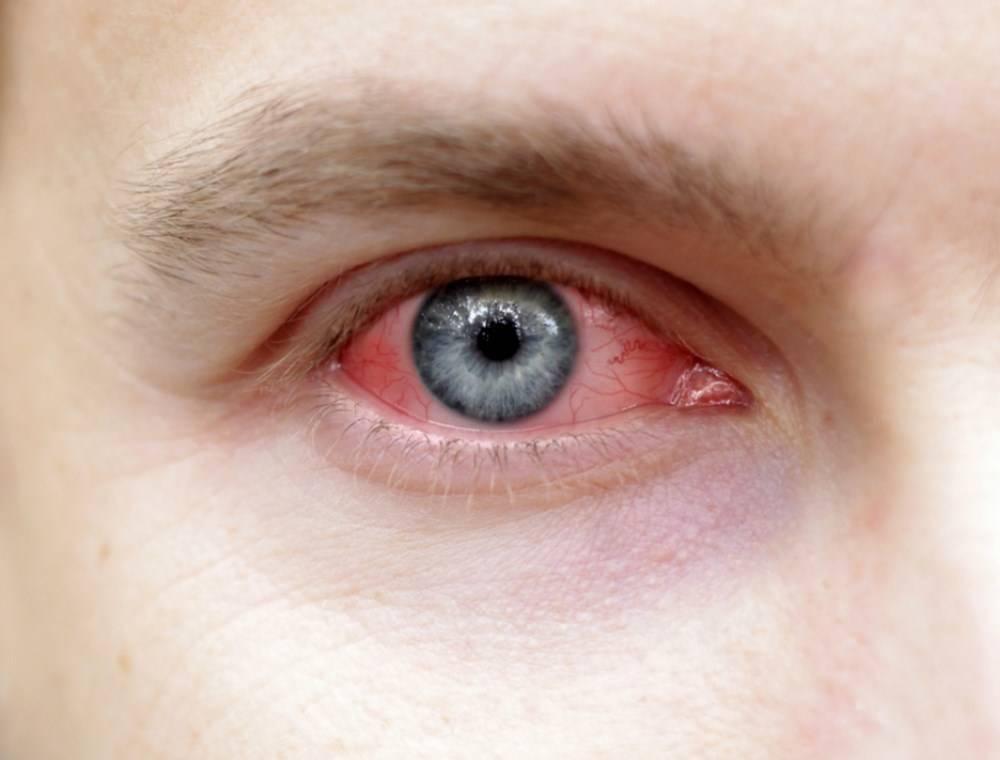 Покраснел глаз у ребенка – почему красный глазик и чешется, без гноя