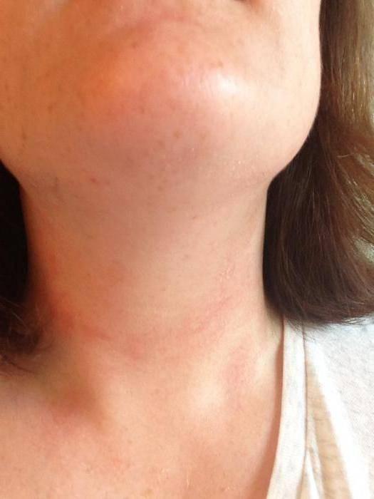Сыпь на шее у ребенка - возможные причины и виды раздражений
