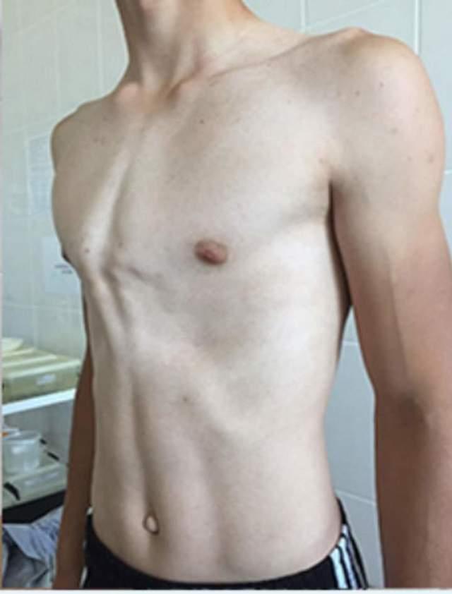 Килевидная и воронкообразная деформации грудной клетки у ребенка: причины, лечение без операции и массаж. топ-проблема: деформация грудной клетки у подростка