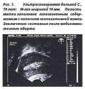 Остатки после аборта