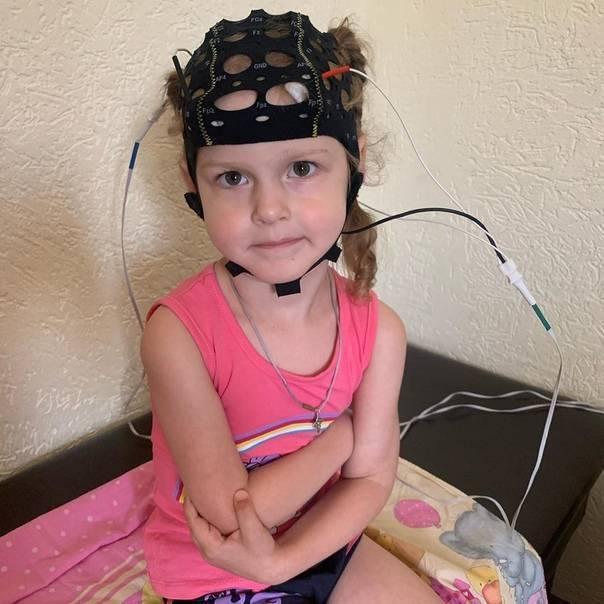 Микрополяризация головного мозга детям: показания и противопоказания курса ткмп