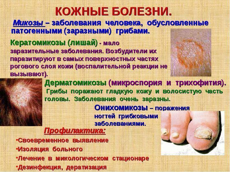 Микроспория у детей: симптомы, лечение и профилактика